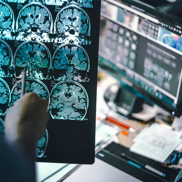 AI Mission: Detect Early Signs of Alzheimer's