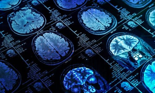 Mass General Turns to AI to Improve Medical Imaging Quality