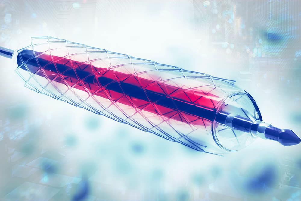 "New ""Smart Stent"" Can Detect Narrowing of Arteries"