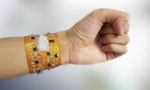 Smart Wristband Samples Blood and Performs Cell Counts